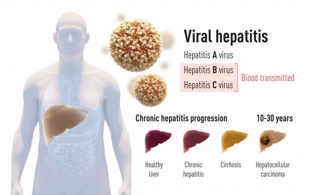 Нобеловата награда за медицина за 2020 г. бе присъдена на откривателите вируса на хепатит С